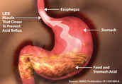 Loosening of Lower Esophageal Sphincter