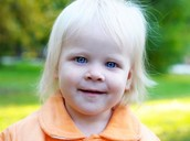 Baby with albinism