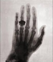 The First X-ray of Mrs. Roentgen's Hand