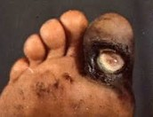 Infected Foot