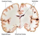Prediscovery Alzheimers