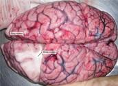 White Matter in the brain