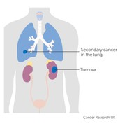 what Happens to the kidneys during stage 4