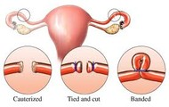 Female Sterilisation