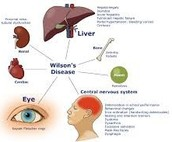 Picture of what Wilson disease can do
