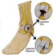 HOW MY LIGAMENT LOOKED