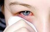 trastornos oculares