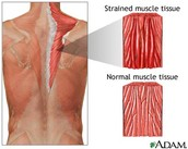 What causes Muscle Strains and What are the Symptoms?