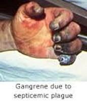 Septicaemic Plague