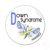 What is Down Synrome?