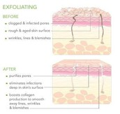 The Importance of Exfoliation