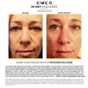 Give yourself a more rested & youthful look