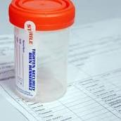 Urine Bottle