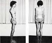 What Anorexia Nervosa does to your body