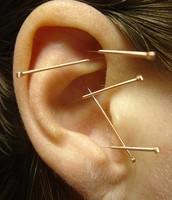 Auricular (Ear) Acupuncture