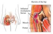 Hip Bursitis