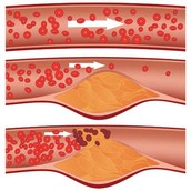 Clogged blood vessels can cause Sickle Cell Anemia