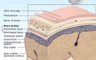 Brain and potential brain injury areas.