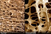 Normal bone vs. a bone with osteoporosis