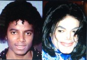 Stars are often getting plastic surgery
