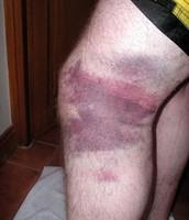 Bruises 3