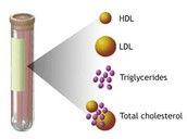 Why do doctors monitor concentrations in LDL and HDL in patients' blood?