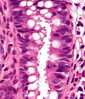 CELLS OF CRYPTOSPORDIOSIS