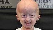 Progeria Patient