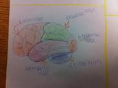 the cerebral