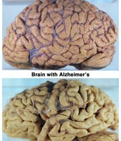 Real Image of Advanced Alzheimer's