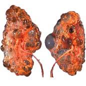 Nasty Livers