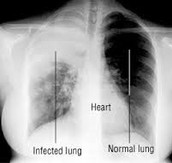 This disease is a lysogenic virus that is found in the victims lungs. It is spread through airborne droplets from a cough or sneeze.  It may be life-threatening to it's prey.