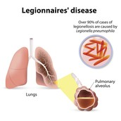 Legionnaire's in the lungs