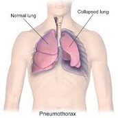 Collapsed vs. full lung