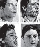 Smallpox Progression