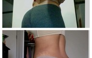 Back Fat Before and After!
