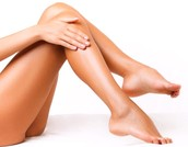 Ways to Prevent Spider Veins