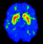 Normal Brain Activity