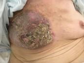 Tumores malignos
