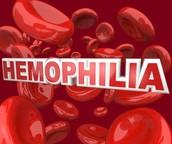 Definition of Hemophilia
