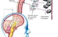 wat zijn de symptomen van multiple sclerose en de gevolgen?
