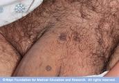 Male Genital Warts*