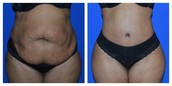 Procedure: Tummy Tuck