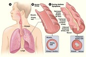 Normal Airway and Airway During Asthma Symptoms