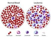 Leukemia DIagram