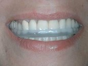 The Case for a TMJ Mouth Guard