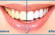 Beverly Weker- Teeth Whitening Patient