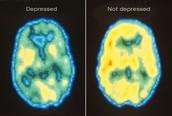 Depressed vs Not Depressed