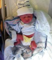 Baby Born With TEF/EA
