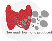 How does Hyperthyroidism effect your body's homeostasis?